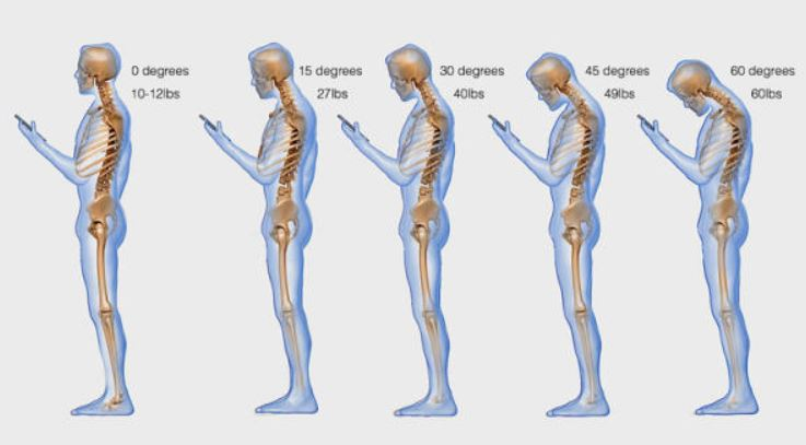 smartphone haltungs probleme